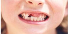 سقوط الاسنان اللبنية عند الاطفال