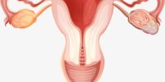 الاصابة بقرحة الرحم وعلاجها
