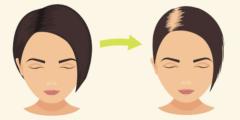 تساقط شعر السيدات بعد الولادة