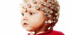 ماهى أعراض زيادة كهرباء المخ عند الأطفال