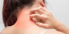 يبتكرون علماء رقعة جلدية لعلاج مرضى سرطان الجلد بدون ألم
