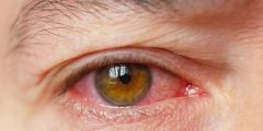 علاج حساسية العين .. تعرف على أسباب الأصابة بحساسية العين و4 أنواع لها وبعض النصائح للتعامل معها.