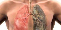 متى يستعيد الجسم صحته بعد التدخين وكيف يتعافى منه