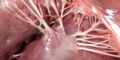 معلومات عن خيوط نياط القلب