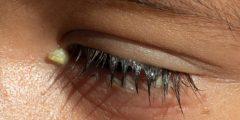 اسباب خروج افرازات من العين