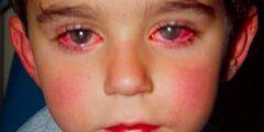أسباب وعلاجات إحمرار العيون عند الأطفال