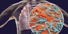 ما هي أعراض وعلاج مرض السل وكيفية الوقاية منه ؟