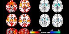 باحثون يكتشفون وجود نوعين مختلفين تشريحياً من مرض الفُصام (شيزوفرانيا)