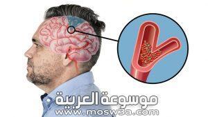 خطر السكتة الدماغية