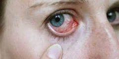 ما هي مضاعفات مرض السكر على العين ؟