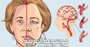 مضاعفات السكتة الدماغية