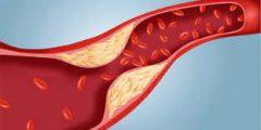 مااسباب وطرق العلاج من ارتفاع الكوليسترول.. طرق وعلاج أعراض ارتفاع الكوليسترول