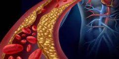 علاج ارتفاع الكوليسترول الضار