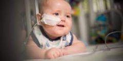 أمراض الاطفال والرضع وضع الانبوب الانفي