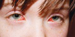 اسباب الاصابة بالتهاب العصب البصري