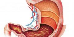 لماذا تتعطل عمليات الهضم بالجسم